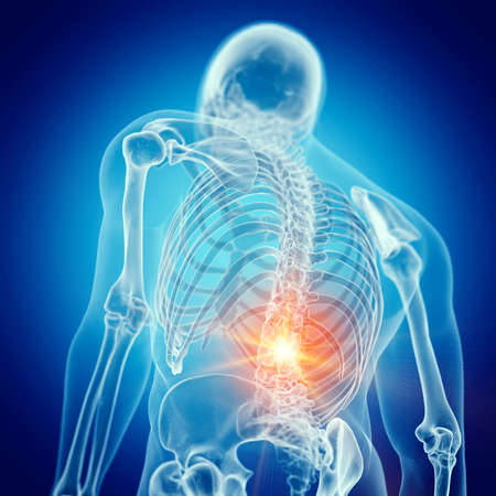 3d rendered medically accurate illustration of a painful lower back Stockfoto