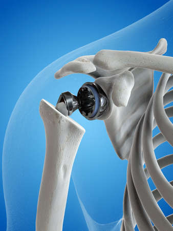 3d rendered medically accurate illustration of a shoulder replacement
