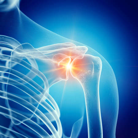 3d rendered medically accurate illustration of a painful shoulder joint