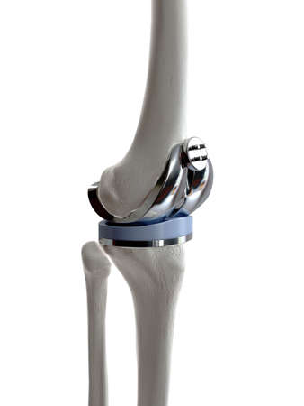 3d rendered medically accurate illustration of a knee replacement Stok Fotoğraf - 108461268