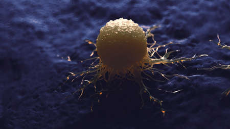 3d rendered medically accurate illustration of a cancer cell