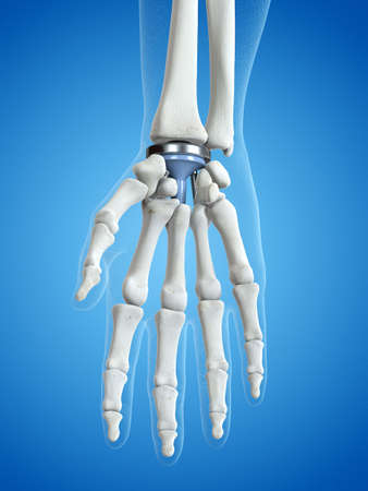 3d rendered medically accurate illustration of a wrist replacement Banque d'images - 108461123
