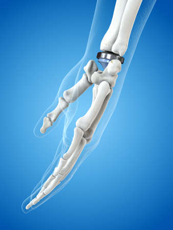 3d rendered medically accurate illustration of a wrist replacement Banque d'images - 108460965