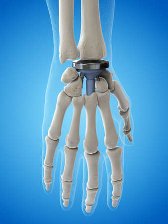 3d rendered medically accurate illustration of a wrist replacement Banque d'images - 108457691