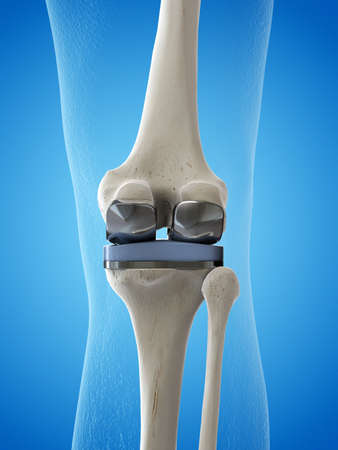3d rendered medically accurate illustration of a knee replacement
