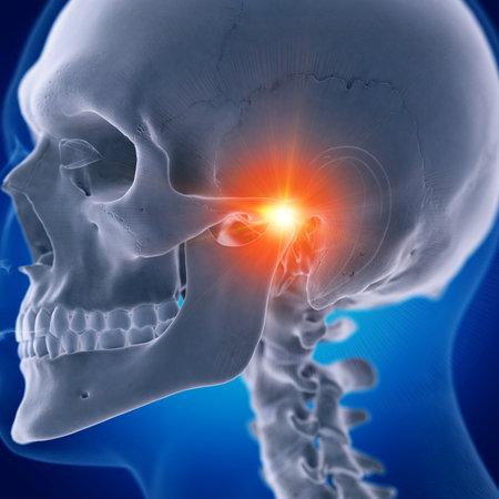 Illustration médicalement précise en rendu 3D d'une articulation temporo-mandibulaire douloureuse Banque d'images
