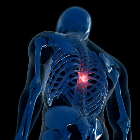 3d rendered medically accurate illustration of a painful thoracic spine