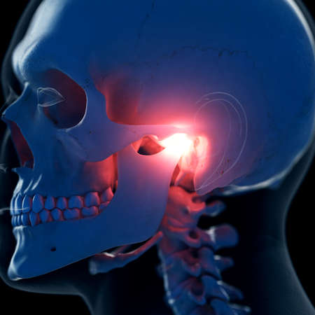 3d rendered medically accurate illustration of a a painful temporomandibular joint
