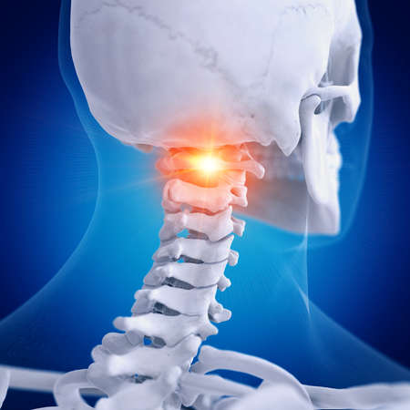 3d rendered medically accurate illustration of a painful atlas vertebrae Stock Photo