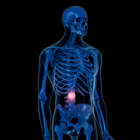 3d rendered medically accurate illustration of a painful back Stockfoto - 108612412