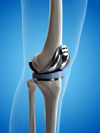 3d rindió la ilustración médicamente exacta de un reemplazo de rodilla Foto de archivo