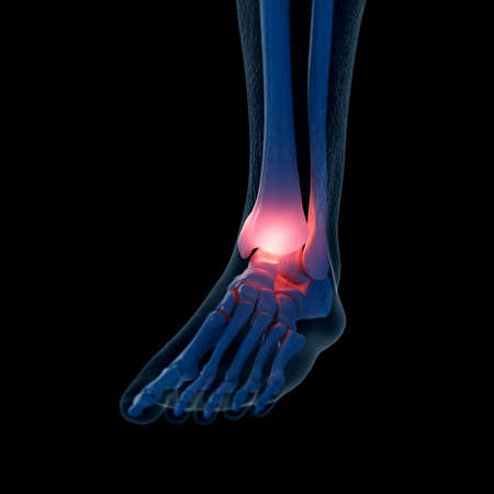 3d rendered medically accurate illustration of a painful ankle Banque d'images - 108637351