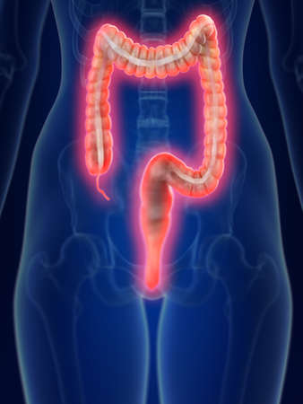 3d rendered medically accurate illustration of an inflamed colon Stock Photo