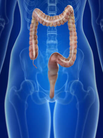3d rendered medically accurate illustration of a womans colon Stock Illustration - 108632660