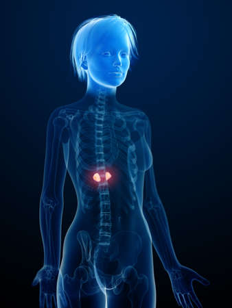 3d rendered medically accurate illustration of an inflamed adrenal glands