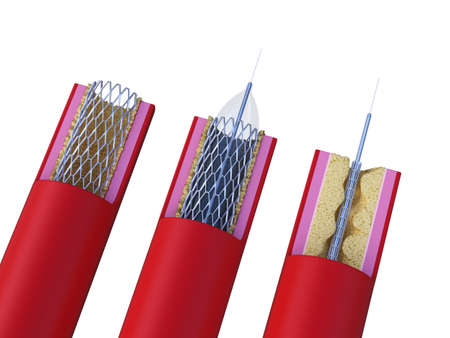 3d rendered medically accurate illustration of a stent being placed