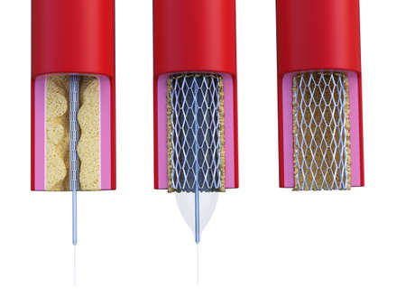 3d rendered medically accurate illustration of a stent being placed Stock Illustration - 109014871