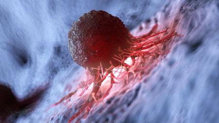 3d rindió la ilustración de una célula del cáncer humano Foto de archivo