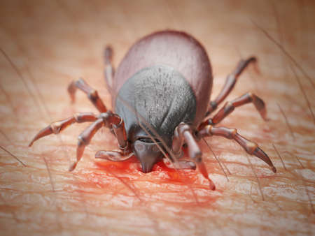 3d rendered illustration of a tick biting in human skin