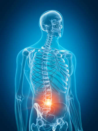 3d rendered medically accurate illustration of painful lower spine Stock Photo