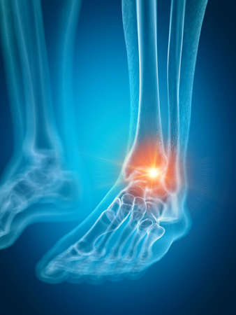 3d rendered medically accurate illustration of a painful ankle Banque d'images - 109046264