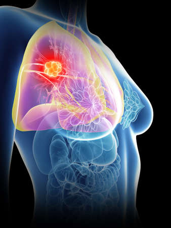 3d rendered medically accurate illustration of a womans lung cancer Stock Photo
