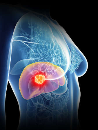 3d rendered medically accurate illustration of a womans liver cancer Stock Photo