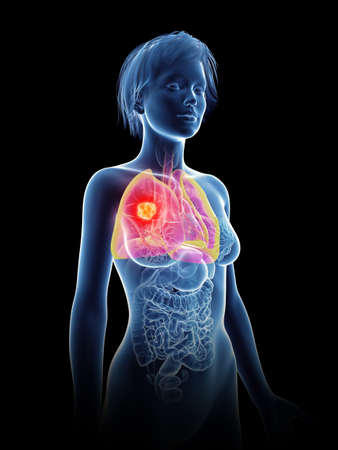 3d rendered medically accurate illustration of a womans  cancer Zdjęcie Seryjne