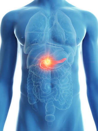 3d rendered medically accurate illustration of a mans pancreas cancer