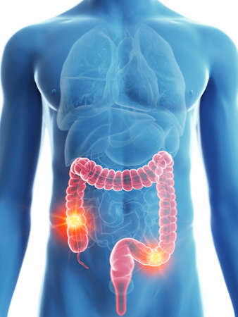 3d rendered medically accurate illustration of a mans colon cancer Standard-Bild - 110234506