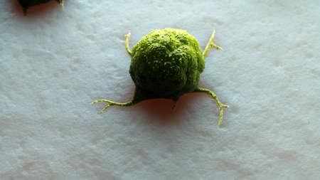 3d rendered illustration of a cancer cell
