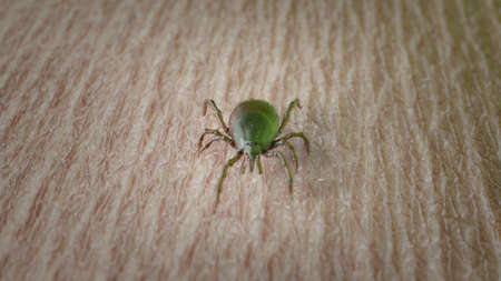 3d rendered illustration of a tick on skin Stock Photo