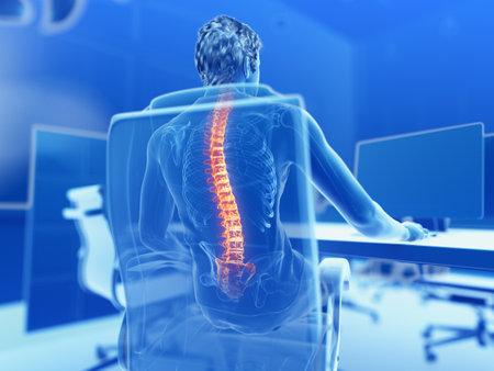 Renderowana ilustracja 3D przedstawiająca mężczyznę pracującego na komputerze - z bólem pleców