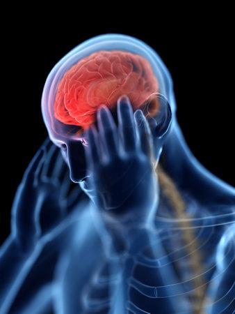 3D-gerenderde afbeelding van een man met hoofdpijn