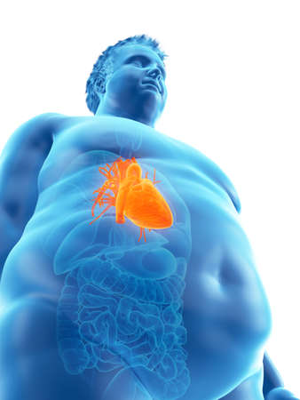 3d rendered medically accurate illustration of an obese mans heart