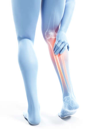3d rendered illustration of a man having a painful calf Stock Photo