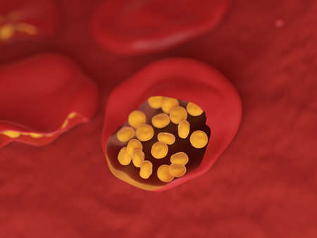 3d rendered illustration of malaria infected blood cells Stock Photo