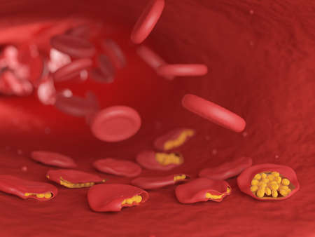 3d rendered illustration of malaria infected blood cells