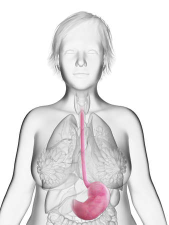 3d rendered medically accurate illustration of an obese womans stomach
