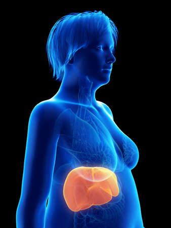 3d rendered medically accurate illustration of an obese womans liver