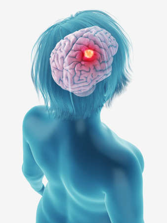 3d rendered medically accurate illustration of a tumor in a womans brain