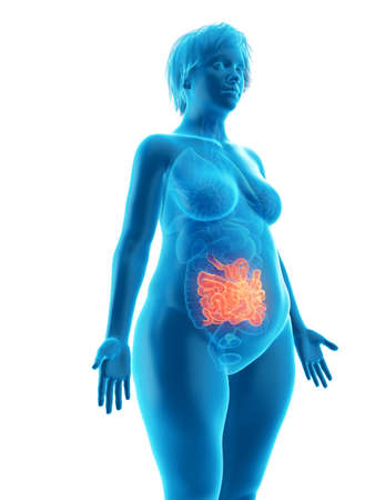 3d rendered medically accurate illustration of an obese womans small intestine