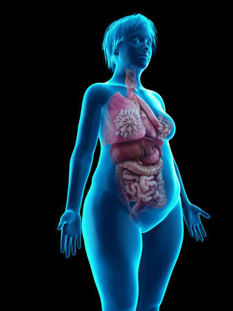 3d rendered medically accurate illustration of an obese womans internal organs Foto de archivo - 111693264