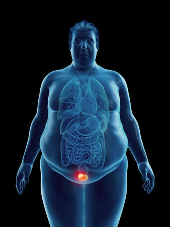 3d rendered medically accurate illustration of an obese mans bladder tumor