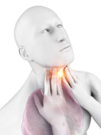 3d rendered medically accurate illustration of a man having a sore throat
