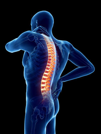 3d rendered medically accurate illustration of a man having a painful back