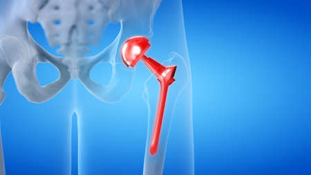 3d rendered medically accurate illustration of a painful hip replacement Banco de Imagens - 115693583