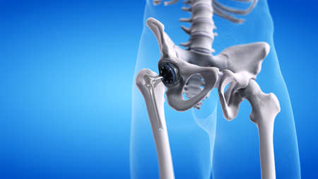 3d rendered medically accurate illustration of a hip replacement