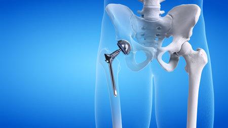 3d rindió la ilustración médicamente exacta de un reemplazo de cadera Foto de archivo