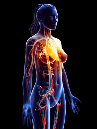 3d rendered medically accurate illustration of a womans inflamed heart Stock Photo